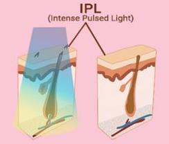 aplicación láser IPL, fotodepilación en el vello