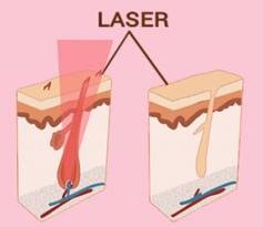 función láser de diodo en el pelo